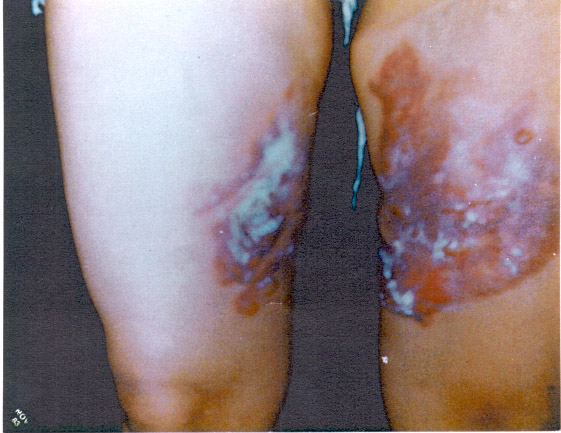 The type of third-degree burns Stella Liebeck received from McDonalds hot coffee in 1994.