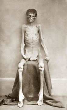 Starving prisoner in the U.S. Civil War